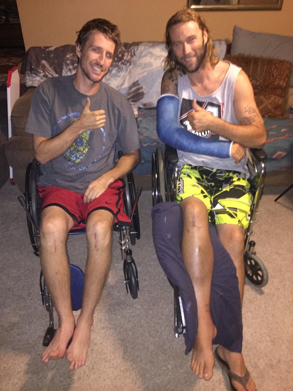 Sewell and Gillen share broken leg stories.